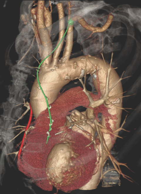CABG - Clear visualization of CABG vessels and RAD stenosis